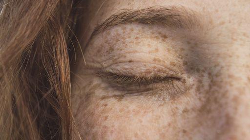 Coronavírus pode deixar marcas na pele; veja alguns sinais