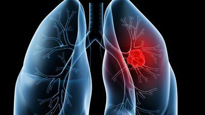 Pesquisas online podem aumentar o diagnóstico precoce de câncer de pulmão