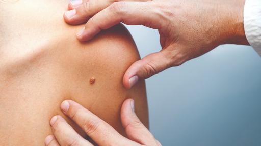Especial Dezembro Laranja | A tecnologia como aliada contra o câncer de pele