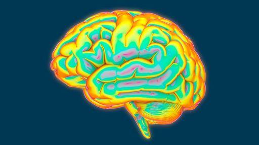 Pessoas que praticam bullying têm o cérebro menor, conclui pesquisa