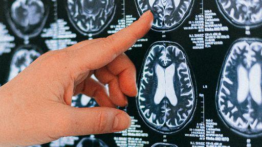 COVID-19 | Novo estudo pode ter descoberto a causa da névoa mental