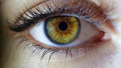 Doenças oculares podem ser sinais precoces de demência, mostra estudo