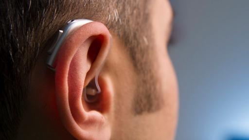 Aparelho auditivo inovador será capaz de filtrar vozes usando IA