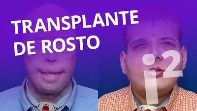 Transplante de rosto [Inovação ²]
