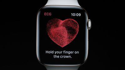 Recurso de eletrocardiograma chega para o Apple Watch nos EUA