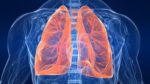 Veja como fica o pulmão de um paciente com sintomas graves de COVID-19