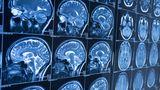 IA consegue identificar Alzheimer 10 anos antes do aparecimento de sintomas