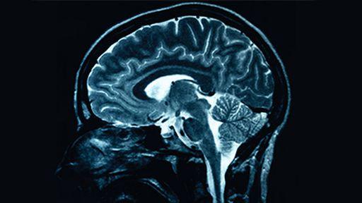 Scanner cerebral determina a idade do paciente