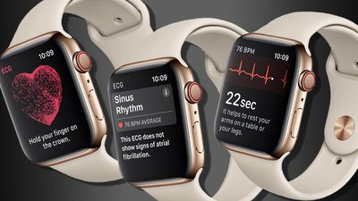 ECG do Apple Watch 4 salva vida de homem nos EUA