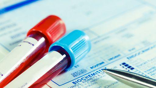 Sangue de pessoas mais novas pode ser a chave contra o envelhecimento