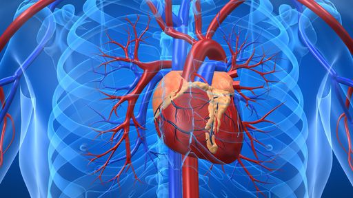 1ª cirurgia cardíaca feita a longa distância com auxílio de robôs é um sucesso