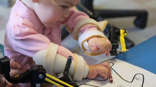 Menina de 4 anos ganha novos 'braços' feitos em impressora 3D