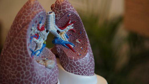Dia Mundial do Combate ao Câncer de Pulmão: entenda causas e sintomas da doença
