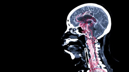 IA consegue prever se você terá aneurismas cerebrais; mas é seguro usá-la?