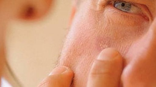 Aplicativo ajuda a realizar auto-exame para câncer de pele