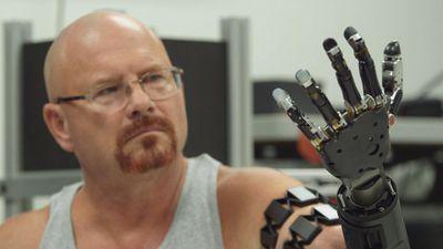 Homem com braço robótico controlado pela mente está aprendendo a tocar piano
